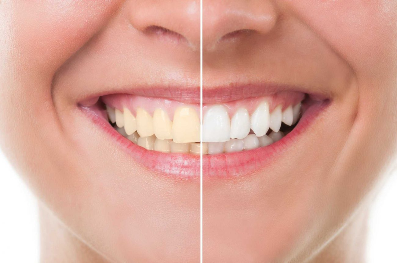 Mitos E Verdades Sobre O Clareamento Dental Angela Brusca